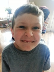 lost a front tooth